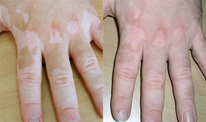 contact-before-after-img