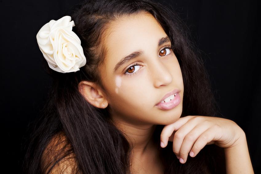 Vitiligo In The Young Vitiligo Clinic